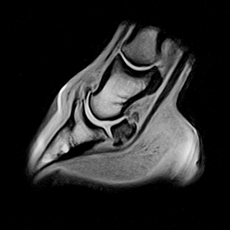 MRI scan foot